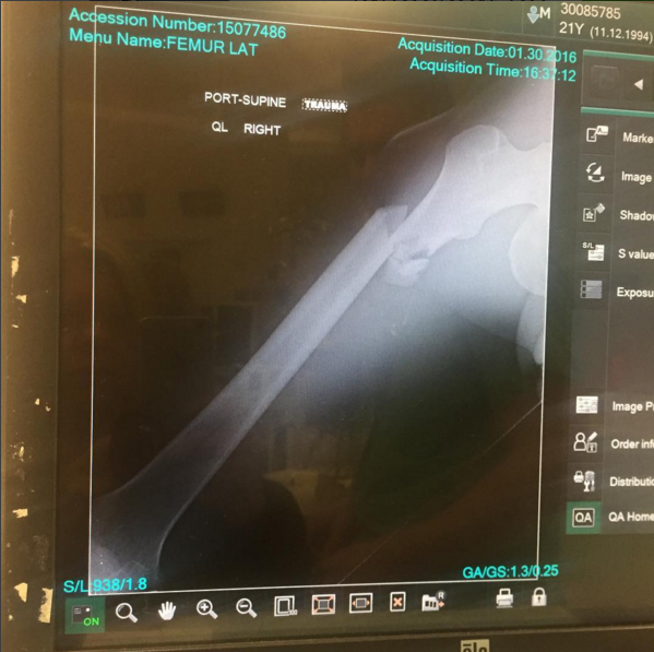 Clout Breaks Femur in Oakland